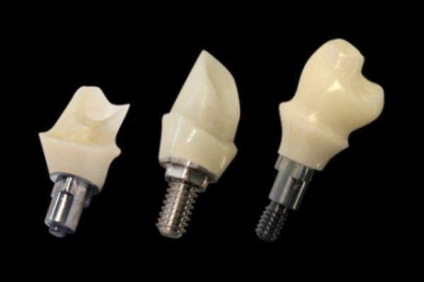 استفاده از ایمپلنت های نوین برای سالمندان فاقد دندان
